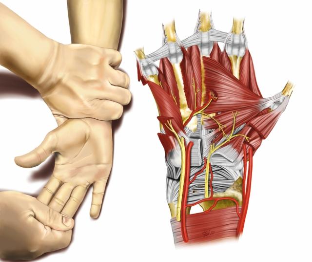 Ilustração mostrando o movimento de pronação do punho para diagnosticar lesão do nervo ulnar.